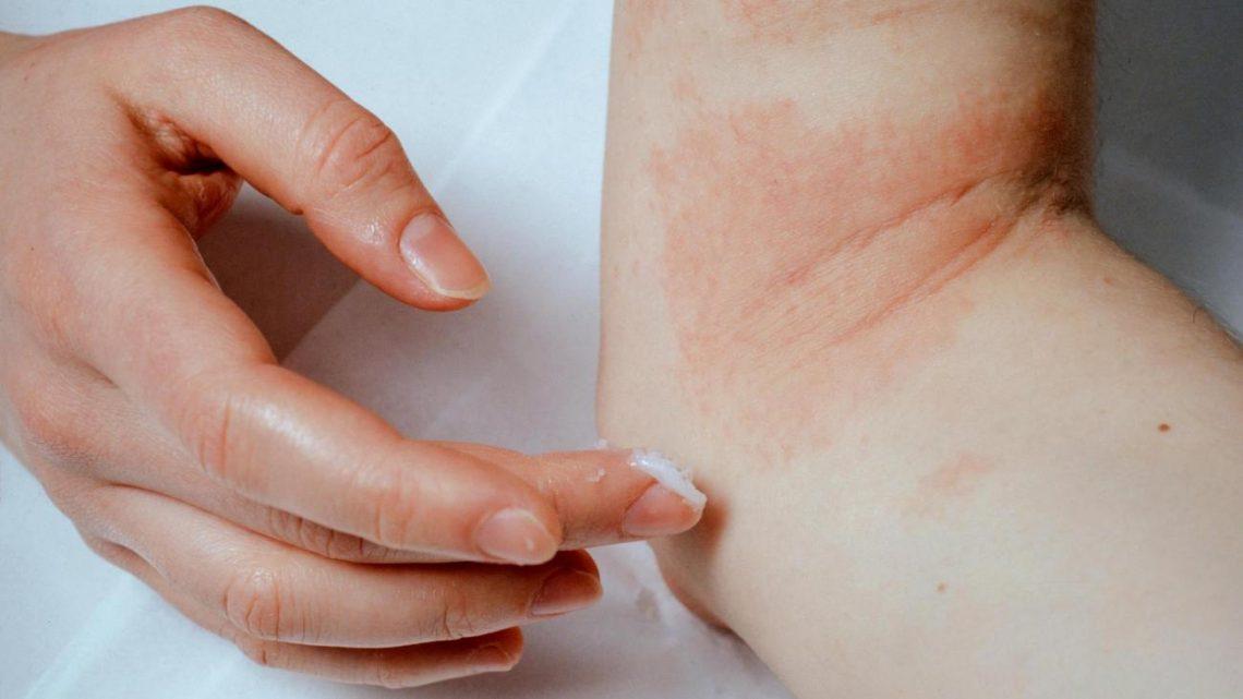 alergi kulit