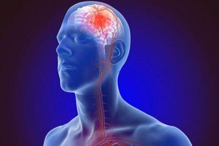 penyebab stroke